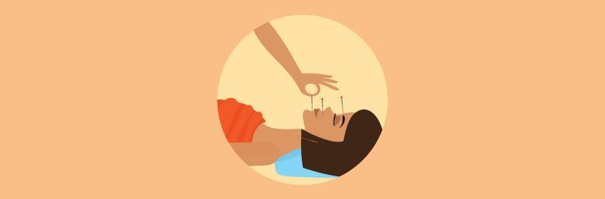 acupuntura para dor de cabeça
