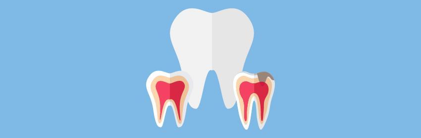 como evitar cáries nos dentes